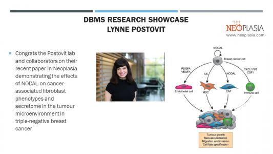 Postovit lab define secreted factors that impact the tumour microenvironment in breast cancer